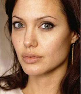 Angelina Jolie DOES NOT have hypopigmentation, merely uneven skin tone without makeup on.
