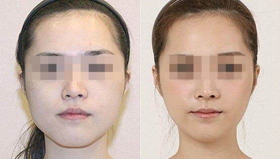 bcfe99e90982c4c469c2775160d40655--korean-surgery-korean-plastic-surgery