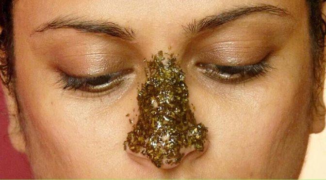 Massive Blackheads On Nose