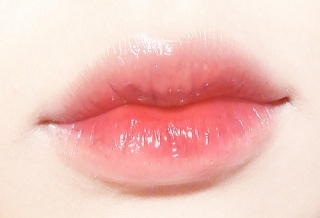 lip fillers at SW1